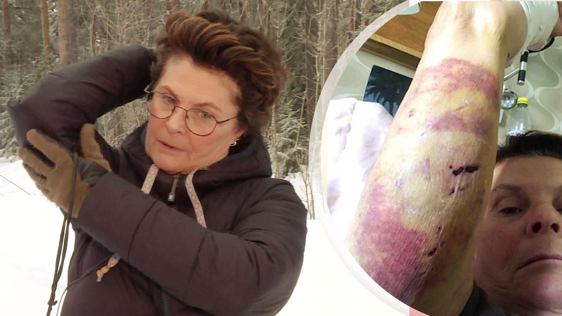 Anitha blev attackerad av två dobermann – nu åtalas ägarna